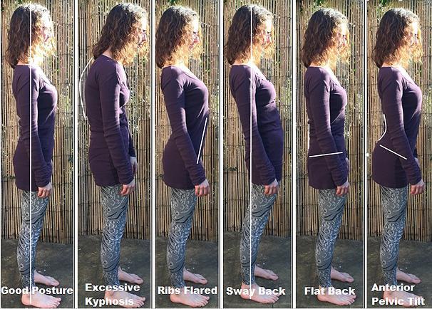 posture postnatal abdominal seperation